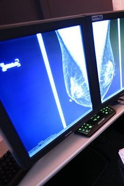 Pictured: the Image of Breast Cancer in Breast Tissue